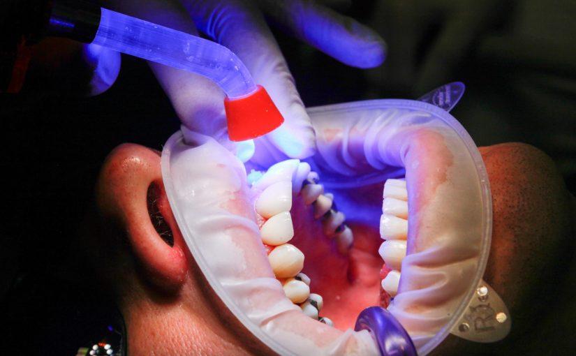 Złe podejście odżywiania się to większe niedobory w ustach natomiast także ich brak