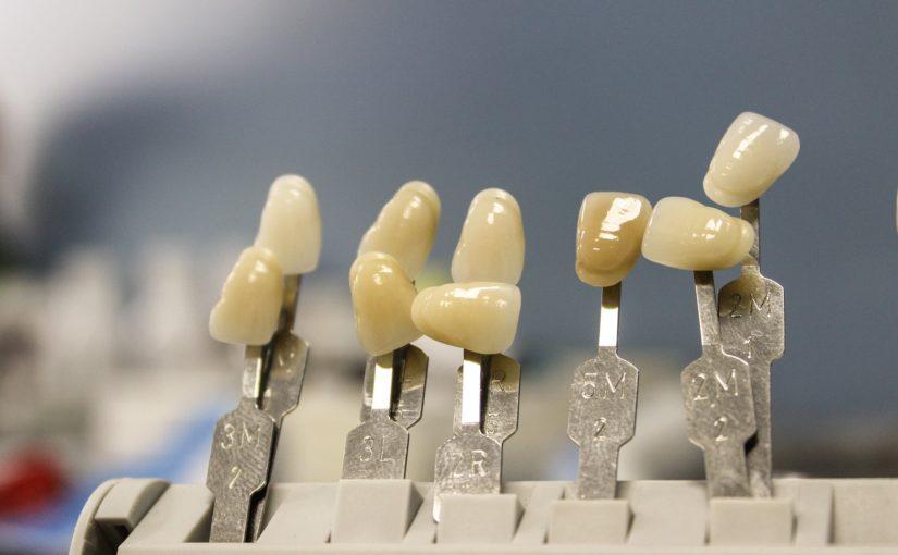 Przepiękne zdrowe zęby także godny podziwu przepiękny uśmieszek to powód do dumy.